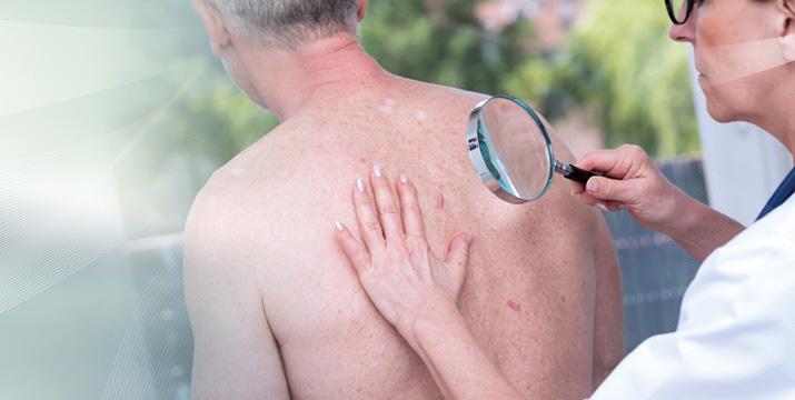 Therapie der aktinischen Keratose – Schwerpunkt Ingenolmebutat