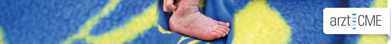 atopische_dermatitis_banner