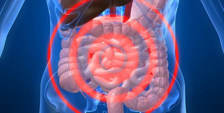 Integrative Therapiemöglichkeiten bei Colitis ulcerosa