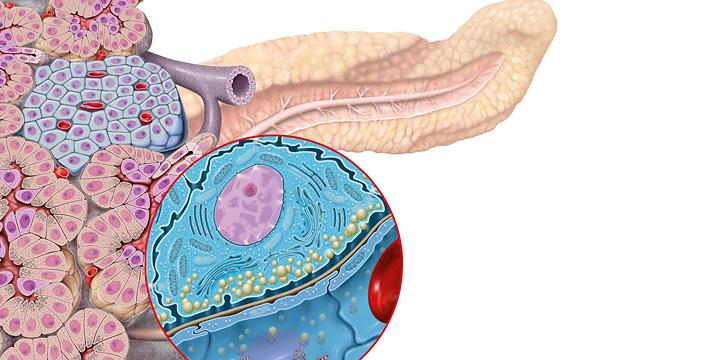 Exokrine Pankreasinsuffizienz und Diabetes – So hängen exokrine und endokrine Pankreasinsuffizienz zusammen