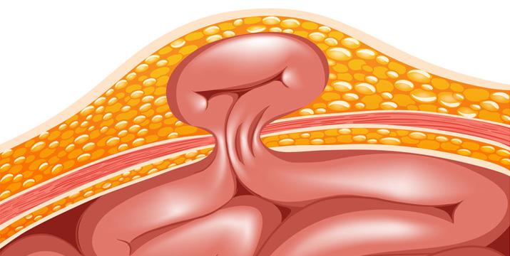 Laparoskopische Hernienoperation (TAPP und TEP)