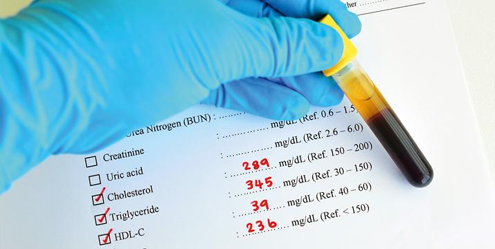 Lipid-Management in der arztgestützten Selbstmedikation und der pharmakologischen Therapie